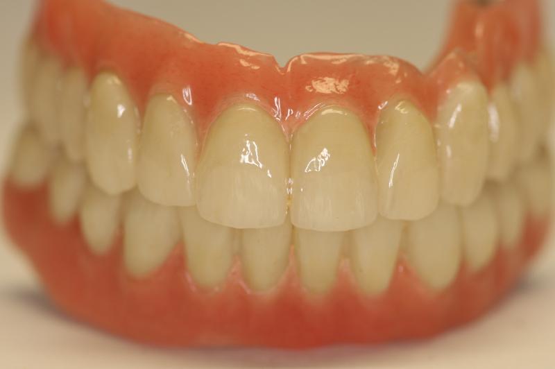 Vollkeramik e.max Restauration auf Implantat Abutments