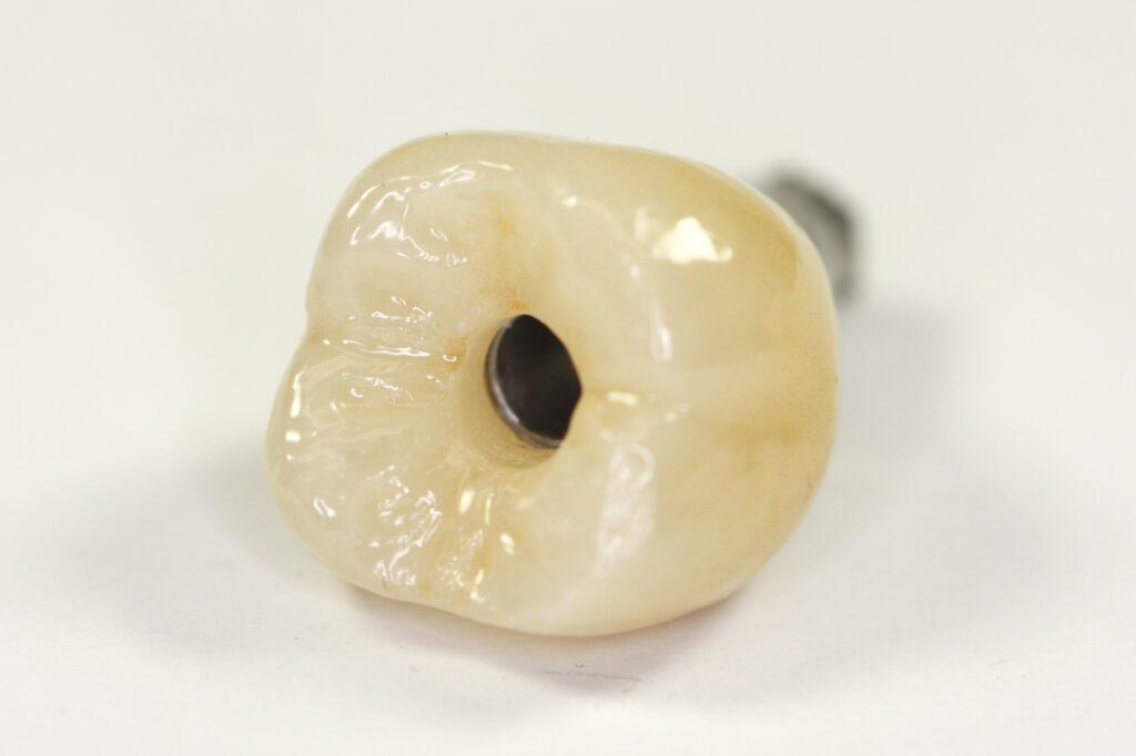 okklusal verschraubte Vollkeramik Krone auf Implantat
