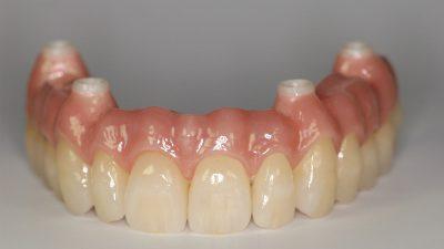 fiz-bruecke-dentallabor-koeln